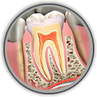 Root Canal Treatment Greenville