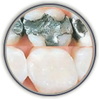 Teeth Whitening Greenville